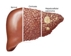 Une illustration d'un foie normal comparé à une cirrhose et un cancer du foie.