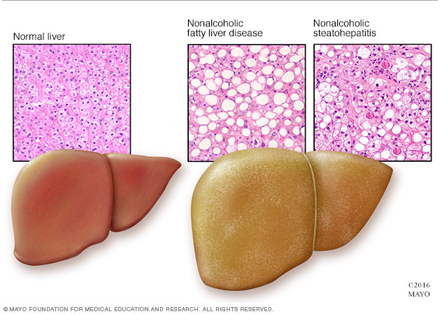An illustration showing the difference between a normal liver and a liver that has nonalcoholic fatty liver disease