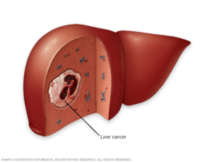 An illustration of a liver showing a spot of liver cancer. Image used with permission from Mayo Clinic.